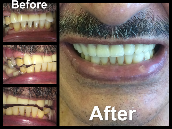Full Upper Denture and Partial Lower Denture along with 2 Cerec Crown Restorations