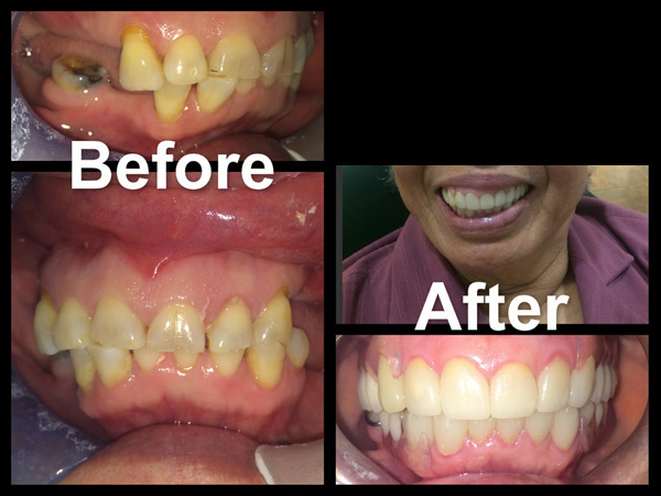 Veneers and Partial Upper and Lower Dentures