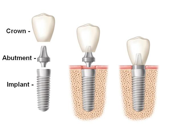 Dentist Sacramento, CA 95828 - Dr. Hung Q. Le, DDS - Implant ...